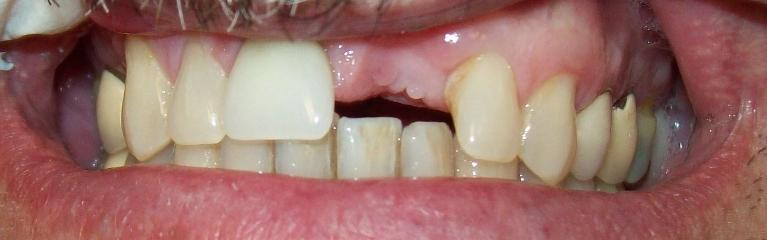 Complete-Smile-Restoration-Before-Image